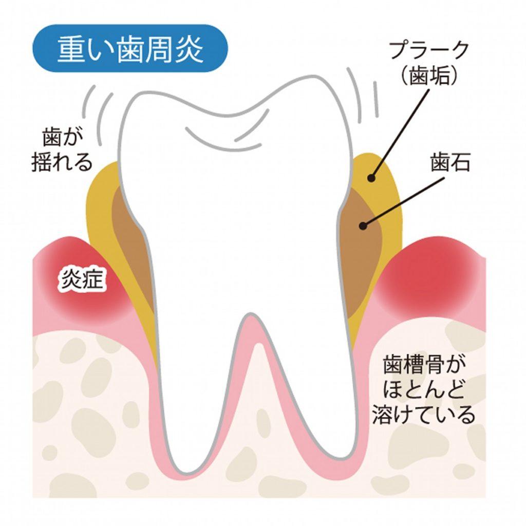 歯周病も口臭の元
