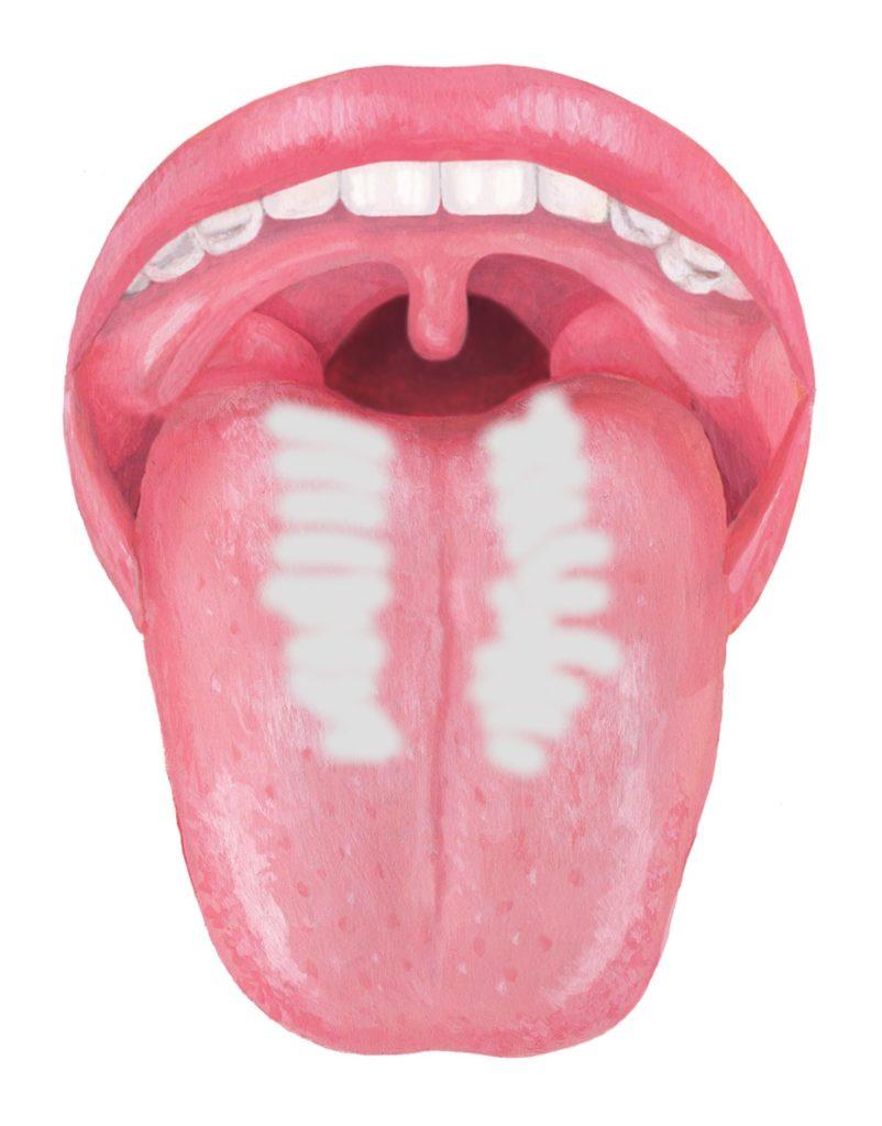 舌苔(ぜったい)は口臭の元