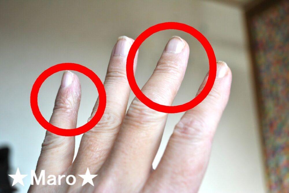 中指小指がアレルナイトで改善