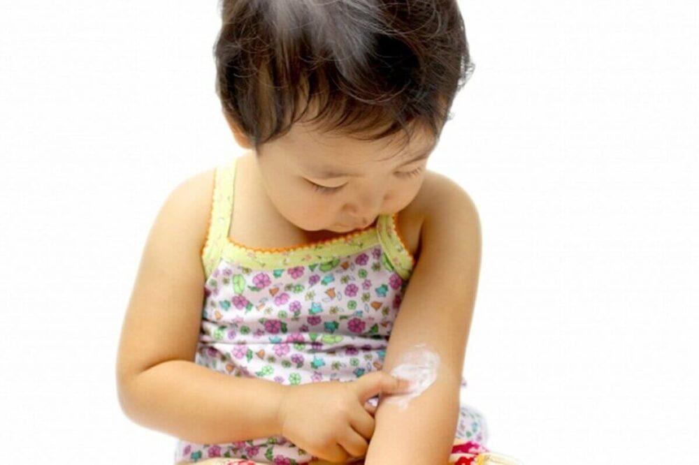 潤静(うるしず)アトピー肌が使ってみた効果|かゆみを抑える成分