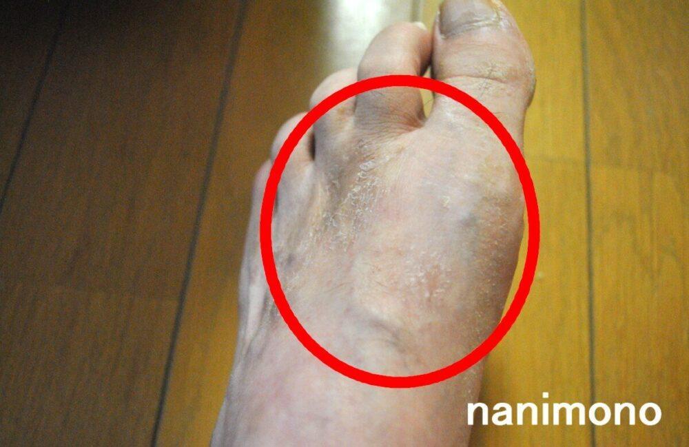 足のアトピーの症状