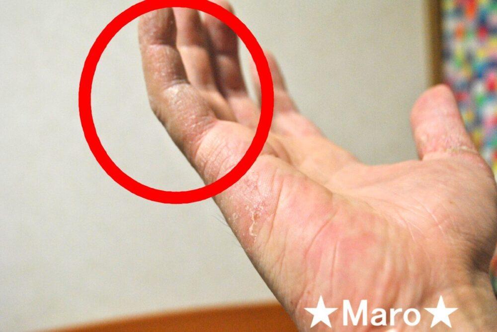 手の側面のアトピー
